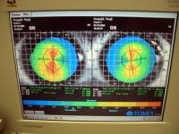 角膜形状の検査